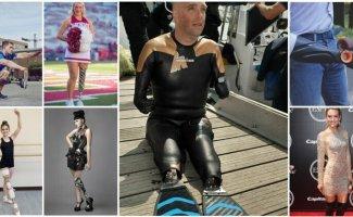 25 поразительных людей-киборгов и их удивительные протезы (26фото)
